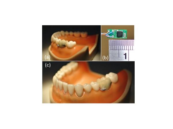 Sensor-Embedded-Teeth