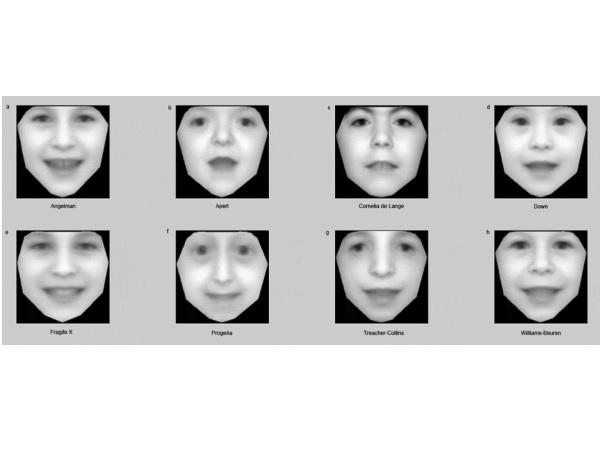 スマホで撮って送るだけ!顔写真から遺伝子疾患を検出するソフトウェア
