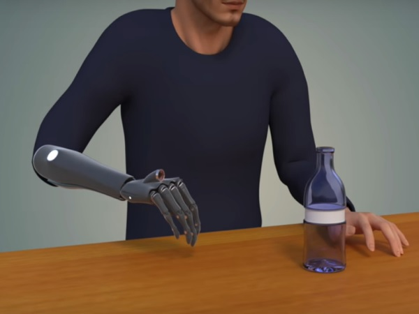Newcastleprostheticlimb