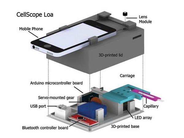 CellScopeLoa2